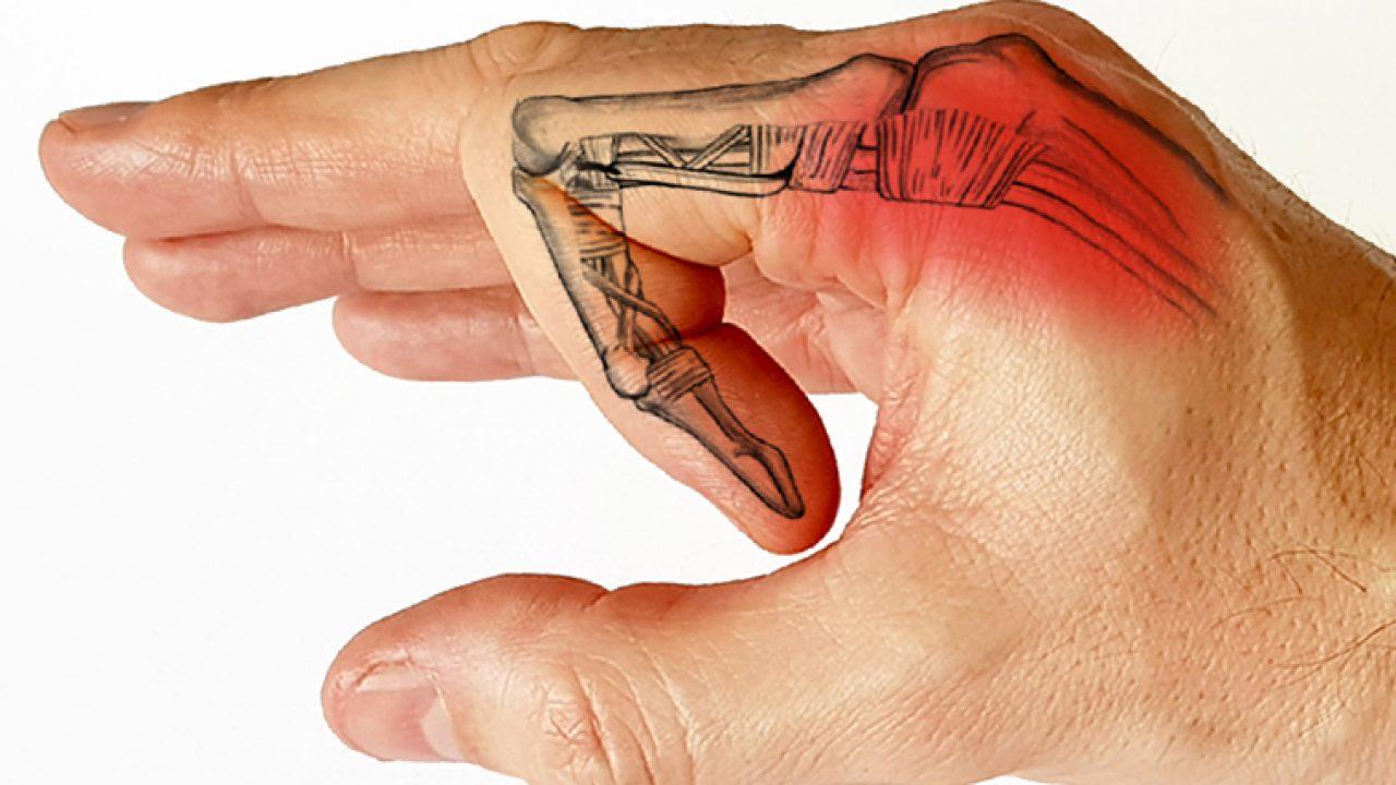 articulația umflată pe tratamentul cu degetul mic