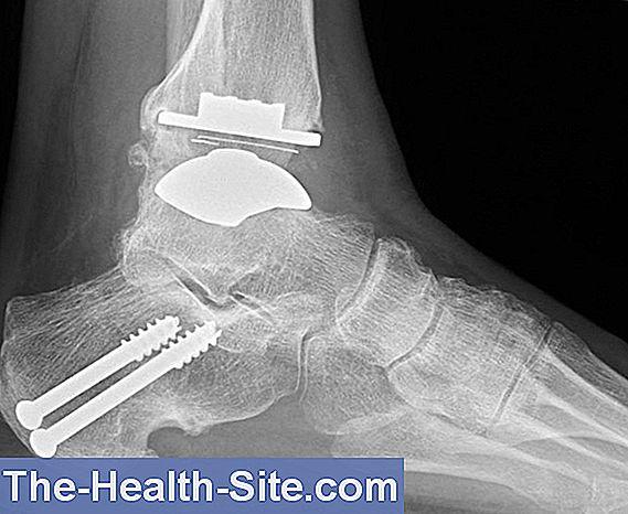 articulație fațetă artroză