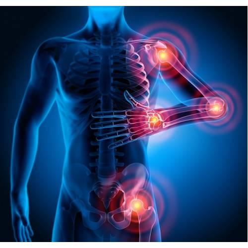articulațiile sunt lărgite și dureroase aconit și tratament articular