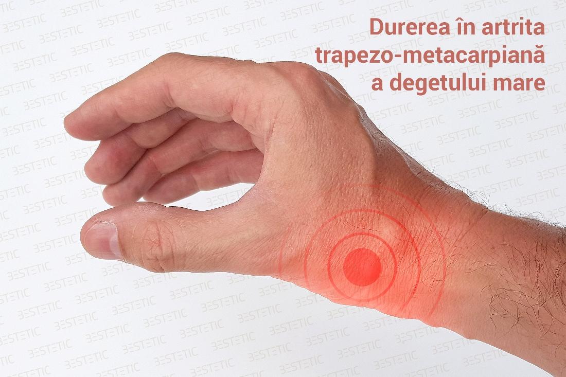 artrita acuta a mainilor
