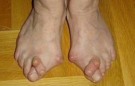 artrita articulațiilor mici ale piciorului