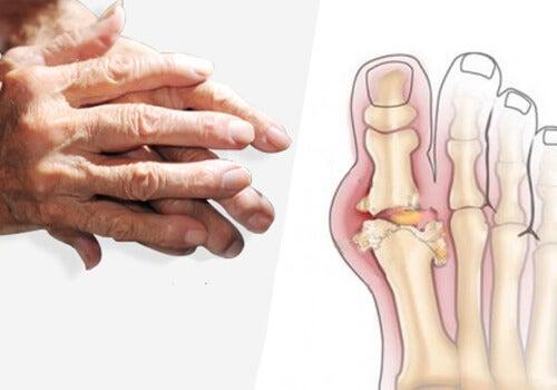 artrita pentru tratamentul bolilor articulare boala oaselor degetului mare