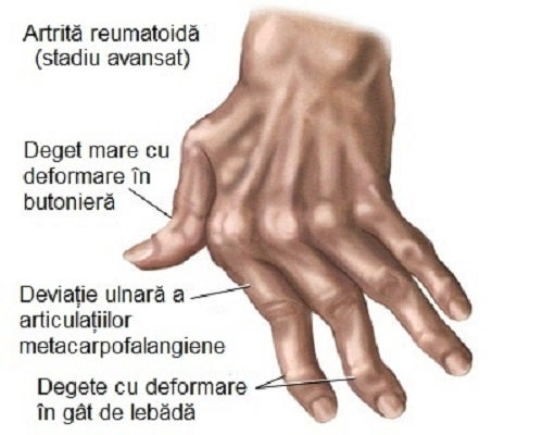 artrita articulației șoldului tratament de 1 grad