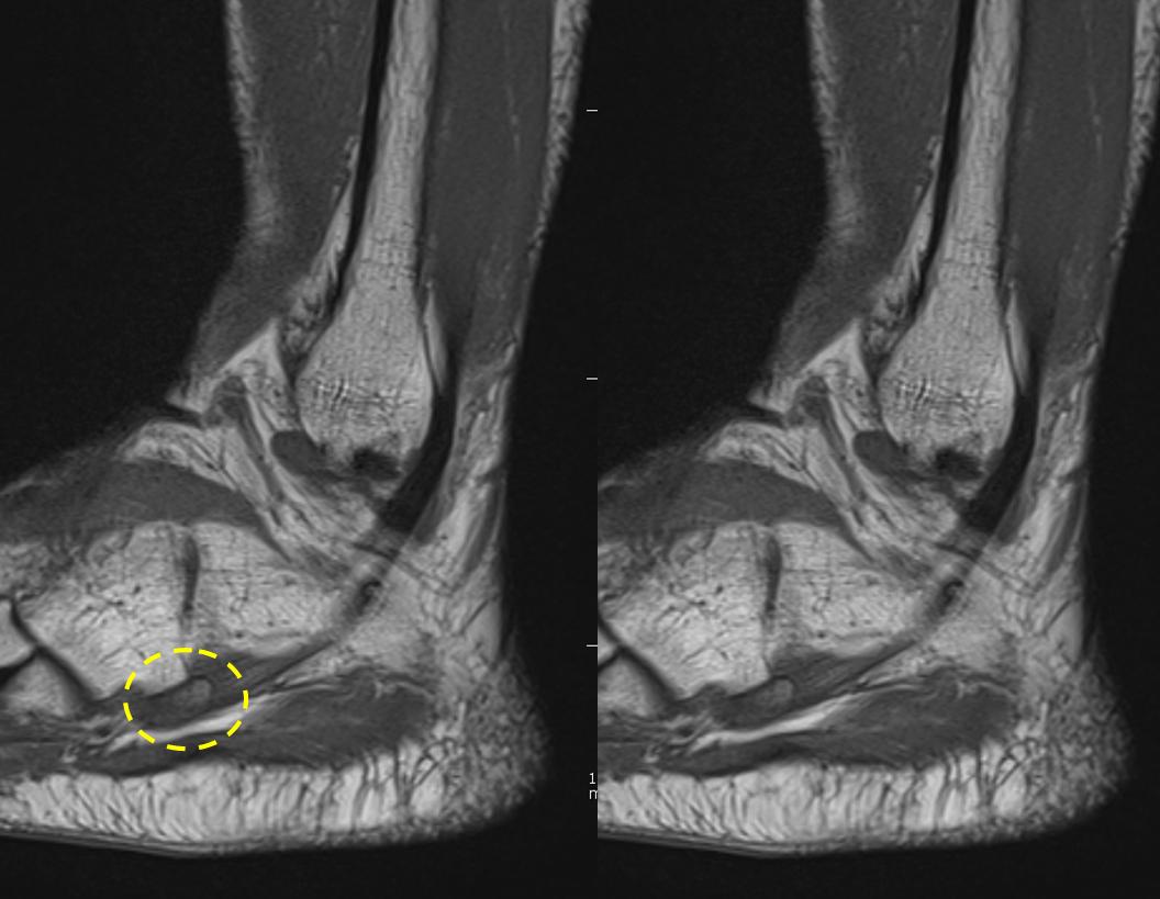 Artroza deformantă a articulației talusului navicular - sfantipa.ro