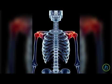 artroza articulațiilor mijlocii unguent de condroxid pentru artroza genunchiului