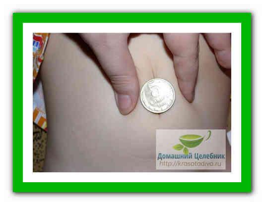 unguente naturale pentru articulații articulația șoldului doare și face clic