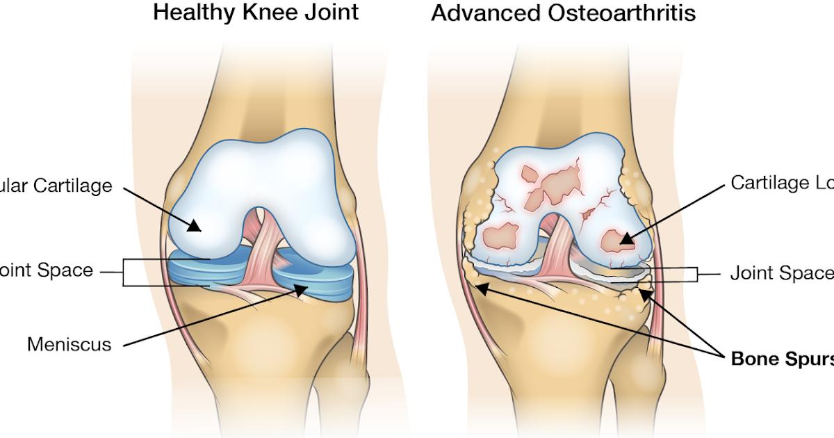 Artroza patelofemorală a genunchiului 3 grade