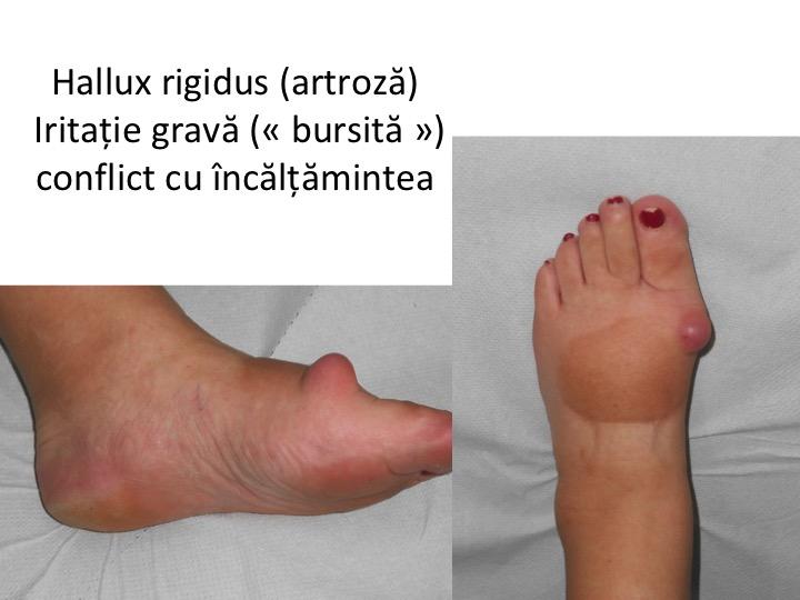 Artroza piciorului cum se tratează artroza deformantă a gleznei