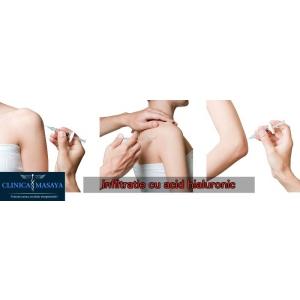 artroza tratament acid hialuronic inflamația articulară este periculoasă
