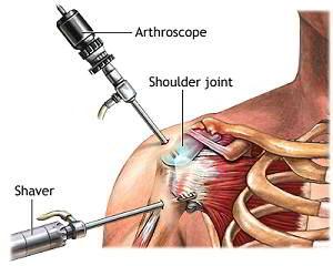 artroza tratamentului articulației umărului stâng