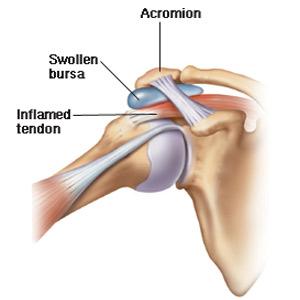 inflamația articulației simptomelor degetului Mersul nordic și artroza genunchiului