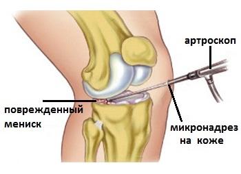 tratament cu ozokerită a genunchiului
