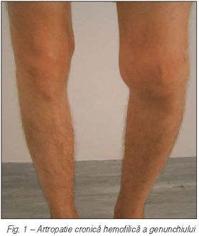 recuperarea hemartrozei genunchiului