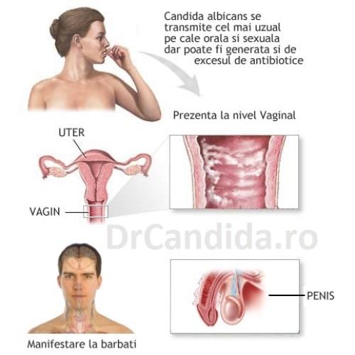Candida albicans – Infecţii cu fungii « Qui bono – Blog