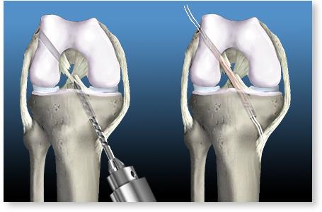 ruperea ligamentului timpului de recuperare a articulației genunchiului