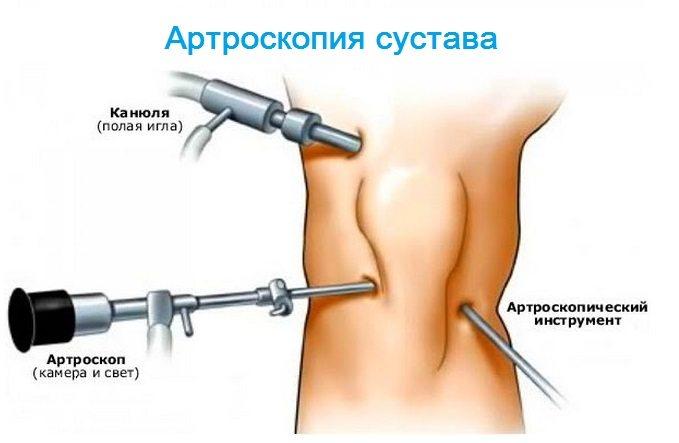 Dureri articulare la deget, Poliartrita reumatoida   campurivizuale.ro
