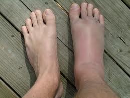 artroza articulației genunchiului ameliorează durerea