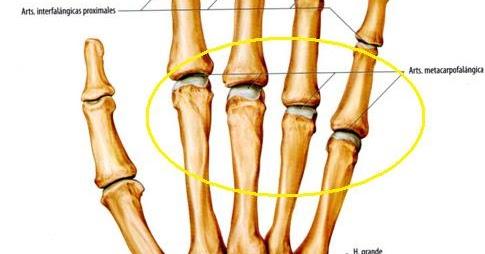 Artrita reumatoidă