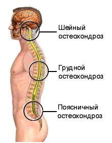 Unguente pentru osteochondroza cervicală și toracică