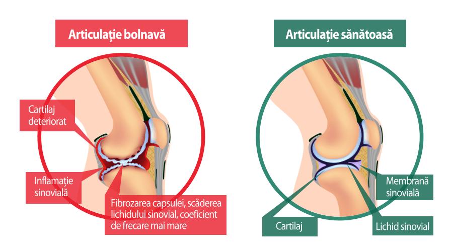 tratamentul dureros al articulațiilor