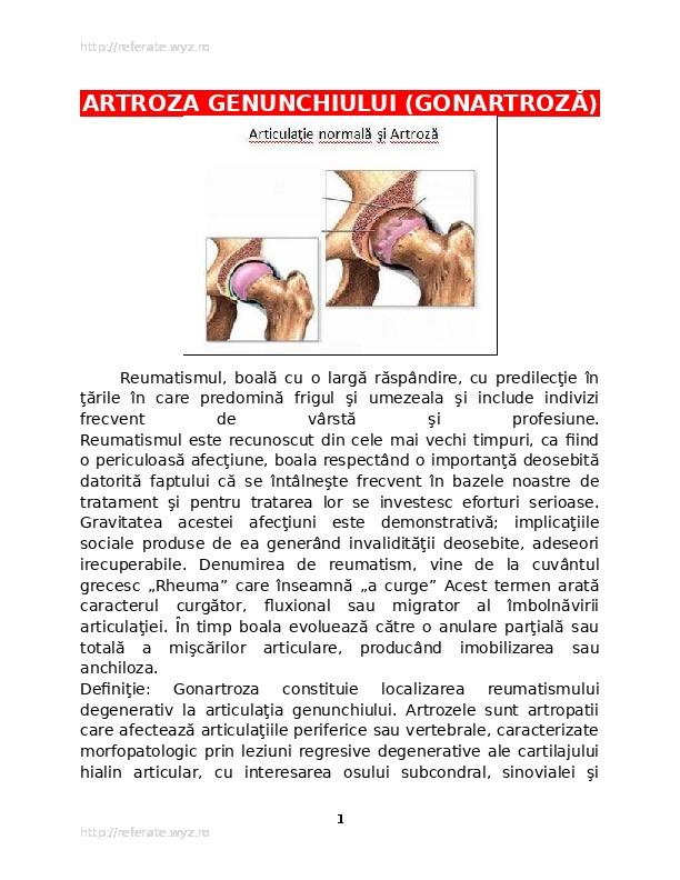 ce este tratamentul gonartrozei genunchiului