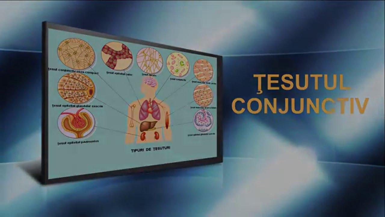 boală nediferențiată a țesutului conjunctiv