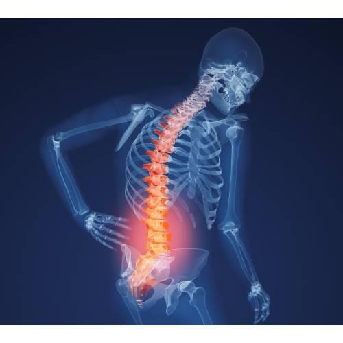 boli rare ale oaselor și articulațiilor durere după operația pe meniscul genunchiului