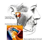 dureri articulare a dintilor remediu pentru dureri la vânătăi articulare