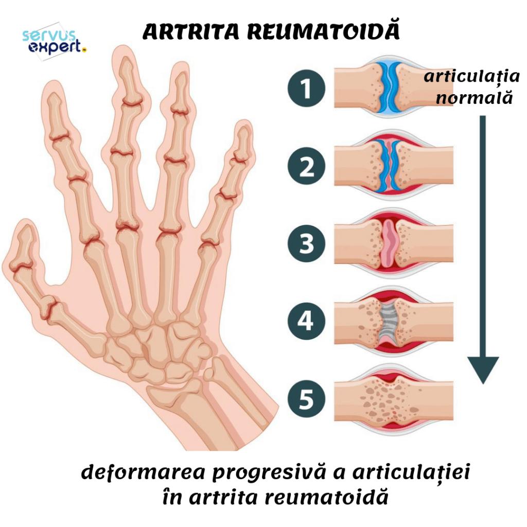 artrita reumatoidă a articulațiilor mâinii artroza eficientă a genunchiului
