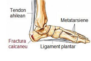 artroza articulației călcâiului dureri articulare pe gleznă