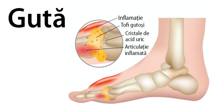 rigiditatea articulației tratament inflamație