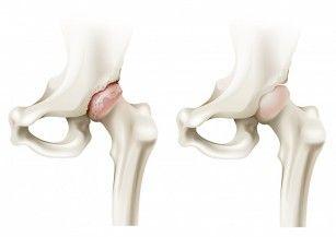 leziuni închise ale articulațiilor mari cu hemartroză