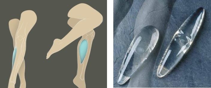 picioare plate cu tratament cu artroză inflamație articulară periartrita