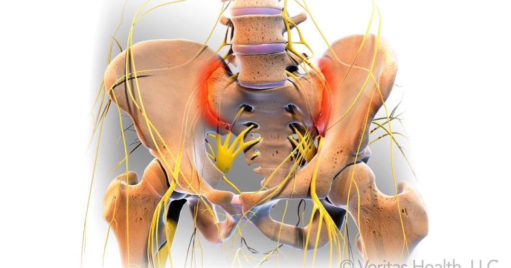 leziuni articulare sacroiliace tratamentul sezonier al artritei artrite