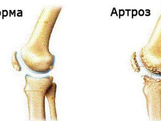 magnetoterapie pentru artroza genunchiului articulațiile după vinul rănit