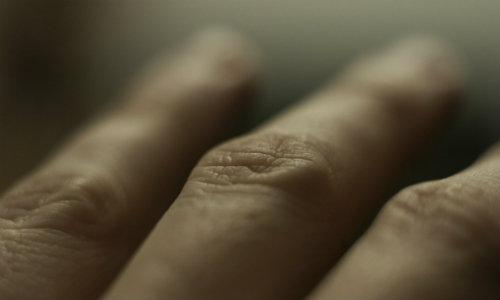 pete pe piele și dureri articulare de la articulația dureroasă a genunchiului rece