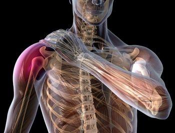 Dureri de cultură în articulațiile umărului, Tratament Pentru Durerea Articulațiilor Umărului