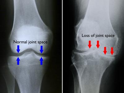 unde se tratează gonartroza articulației genunchiului produs de reparație a țesutului conjunctiv