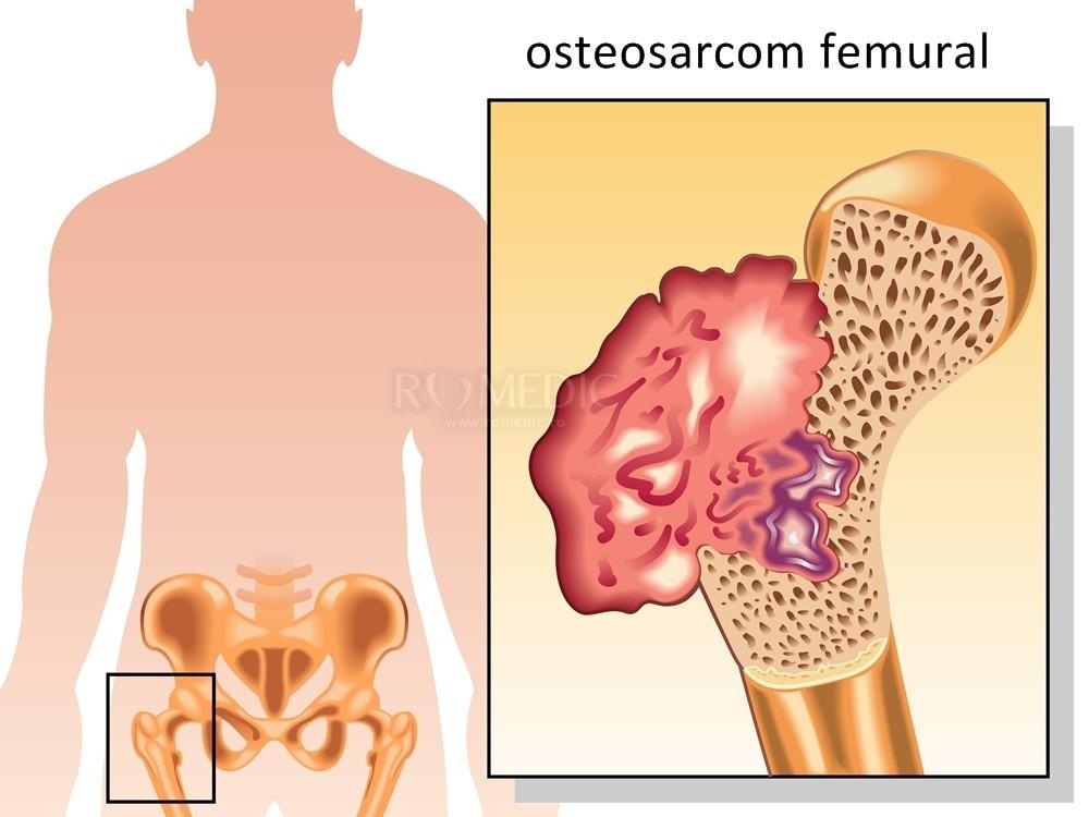 deteriorarea ligamentelor și mușchilor articulației șoldului