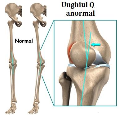 Durere în jurul patelei Durerea de genunchi: afectiuni si metode de tratament