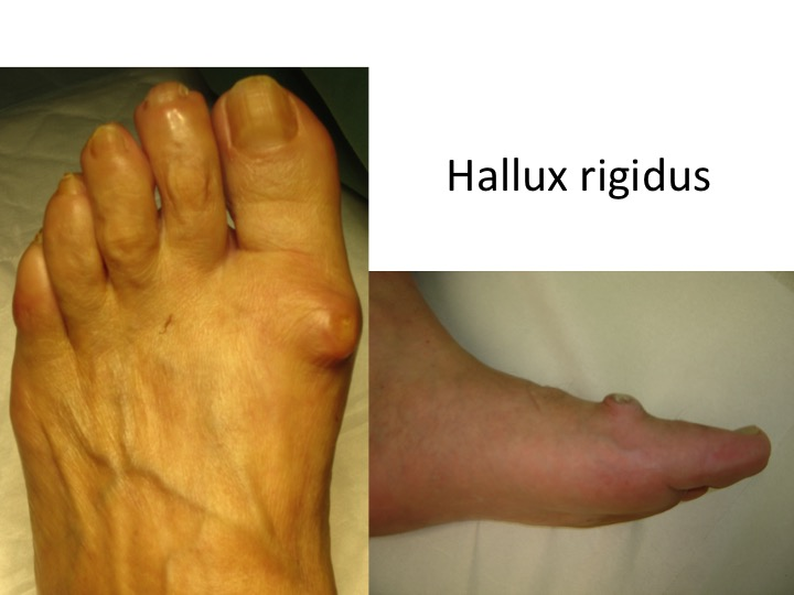 ce este artroza piciorului și tratamentul acestuia boli ale articulațiilor și oaselor mâinilor
