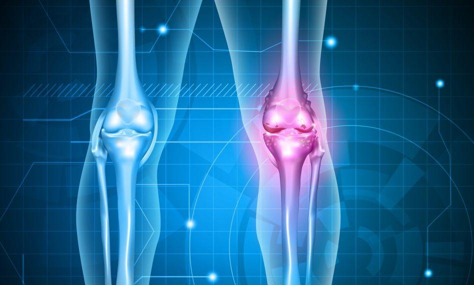 are cineva vindecat artroza genunchiului tratament după entorsa gleznei