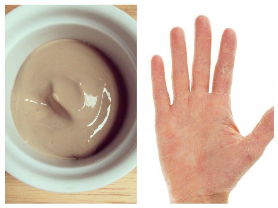 crăpături la mâini și doare comprimate de artra pentru dureri articulare