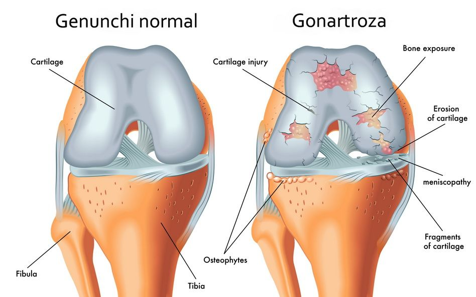 cu artroza genunchiului