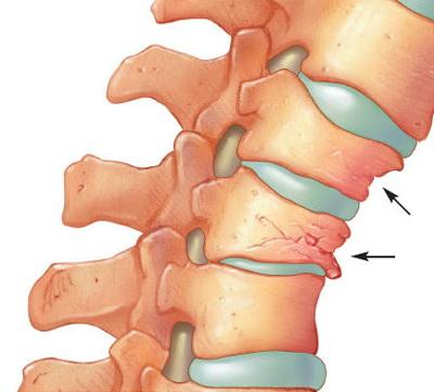 cum doare articulația coloanei vertebrale