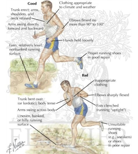 cum să alergi corect fără dureri articulare tratamentul periei fracturilor articulare