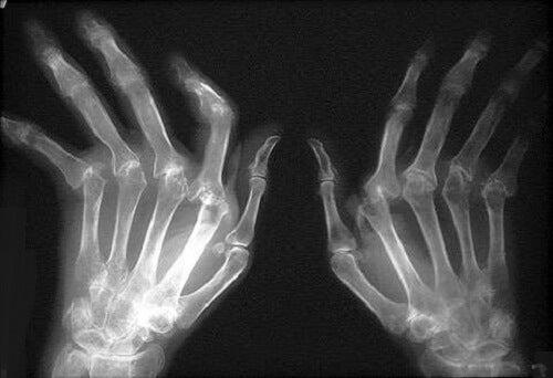 cum să tratezi artrita din spate cum doare o articulație falsă