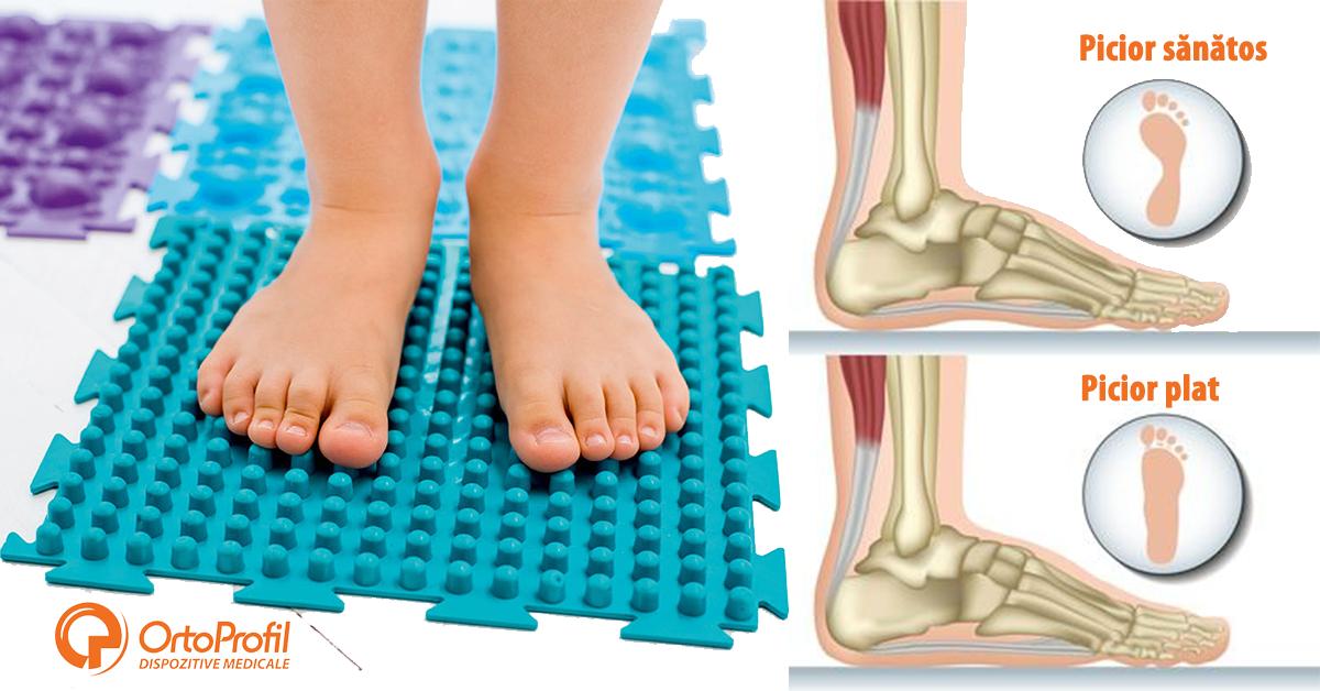 Dureri de gleznă cu picioarele plate. Tendinita la picior (fasceita plantara)