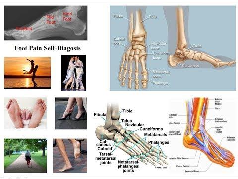 început artroza articulației gleznei dacă umărul doare în articulație