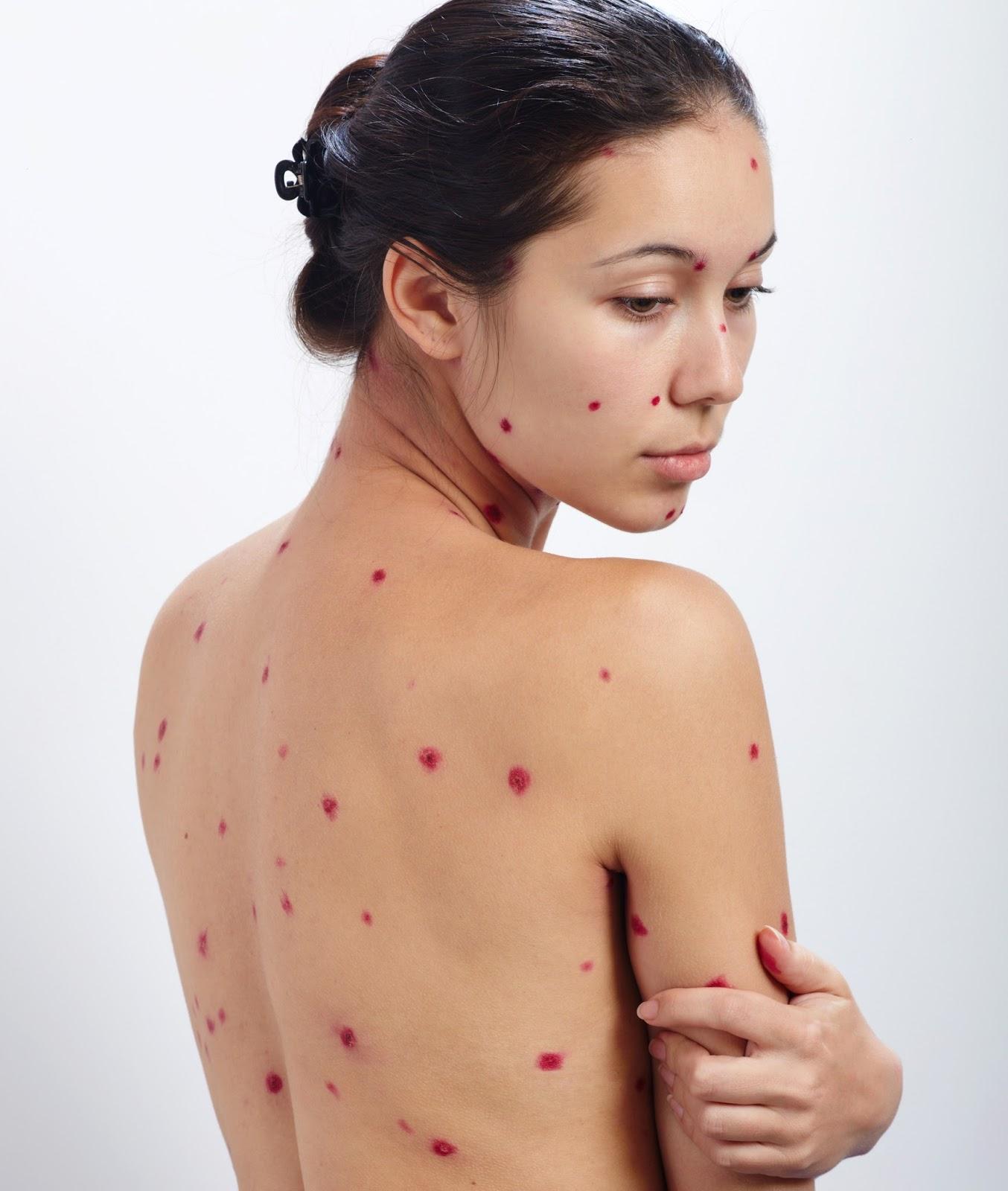 Dureri articulare cu varicela